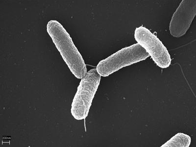 Salmonella typhimurium – Foto: Divulgação/Wikimedia Commons