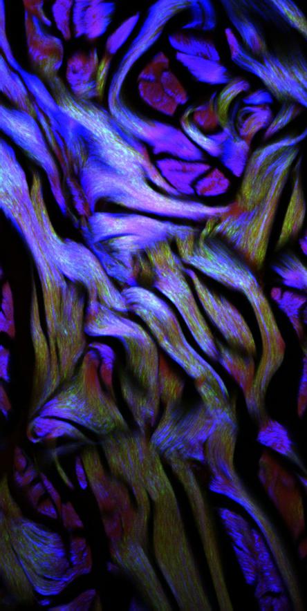 """IntoTheDermis 2 - Com esta imagem, o italiano Alessandro Cosci ganhou o primeiro lugar no """"I Concurso de Imagens em Ciências da Vida"""" - 2012"""
