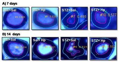 Tratamento com peptídeo hemopressina ajudou a regenerar bainha de mielina em camundongo com neuropatia diabética - Foto: Divulgação