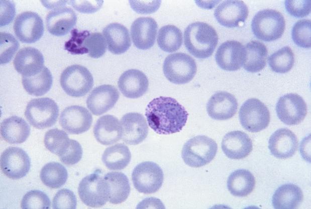 Plasmodium Vivax - Foto: Wikimedia Commons