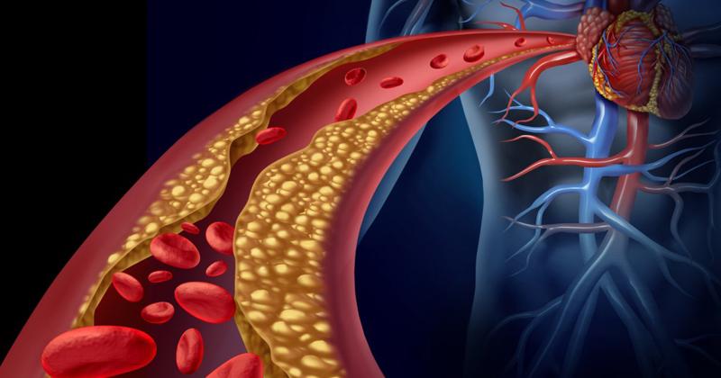 Colesterol - Ilustração: Fissac