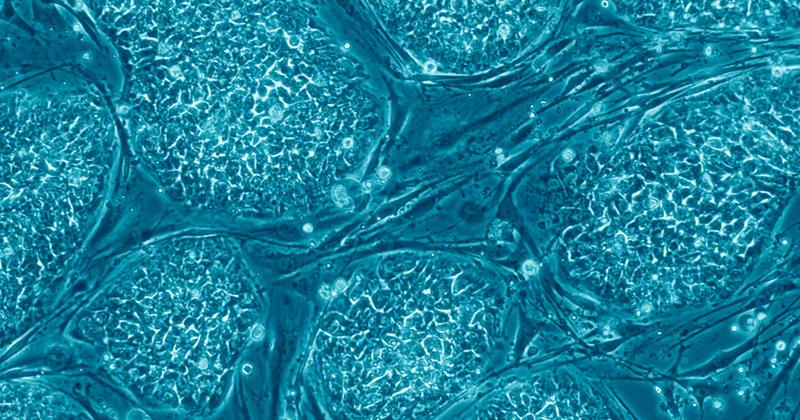 Células estaminais embrionárias humanas - Imagem: Nissim Benvenisty via Wikimedia Commons