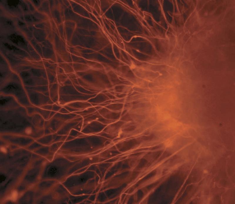 As células nervosas, um exemplo de um tipo de célula após a diferenciação Imagem: Nissim Benvenisty via Wikimedia Commons