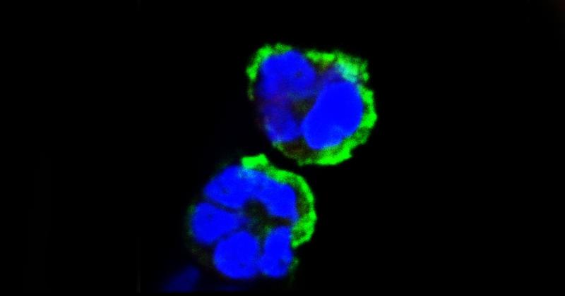 Estudos com camundongos indicam que dois medicamentos capazes de inibir a enzima TrxR-1 – já disponíveis no mercado para outros fins – são eficazes para reduzir a inflamação e a mortalidade de pacientes sépticos - Imagem: Microscopia confocal de leucócito durante testes in vitro
