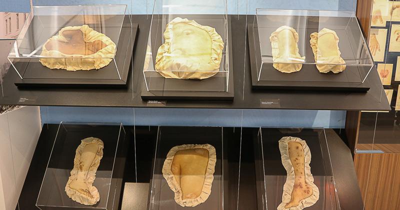 """reg. 448-16 FM - Faculdade de Medicina. Museu Histórico Prof. Carlos da Silva Lacaz. Exposição """"Pele Enferma"""". 2016/12/16 Foto: Marcos Santos/USP Imagens"""