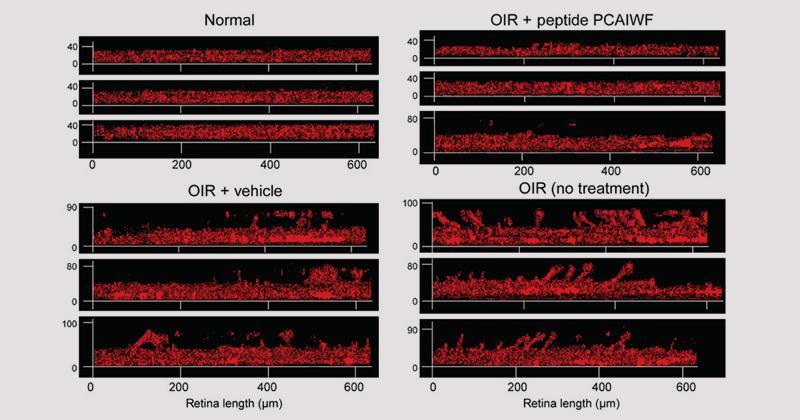Imagens de microscopia mostram a diferença na espessura da camada vascular na retina dos seguintes grupos (sentido horário): animais sem retinopatia; animais com retinopatia induzida tratados com o peptídeo; animais com retinopatia tratados com placebo e animais com retinopatia sem tratamento –  Imagem: Science Advances