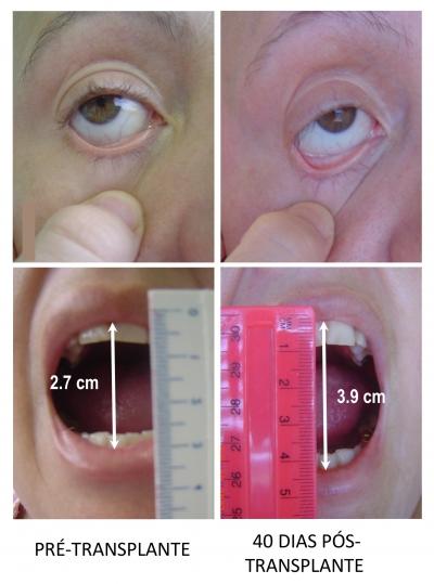 As fotos mostram o aumento da elasticidade da pele da paciente após o transplante de células-tronco, sinalizando o êxito no combate à esclerose sistêmica - Foto: arquivo do pesquisador via Agência Fapesp