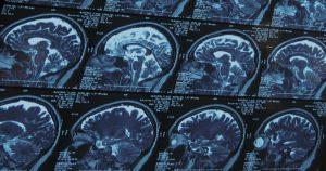 Processos infecciosos desencadeiam síndrome de Guillain-Barré