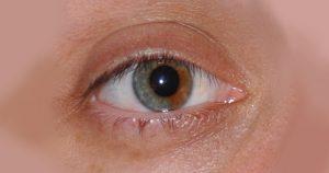 Doença que pode levar à cegueira está com os dias contados