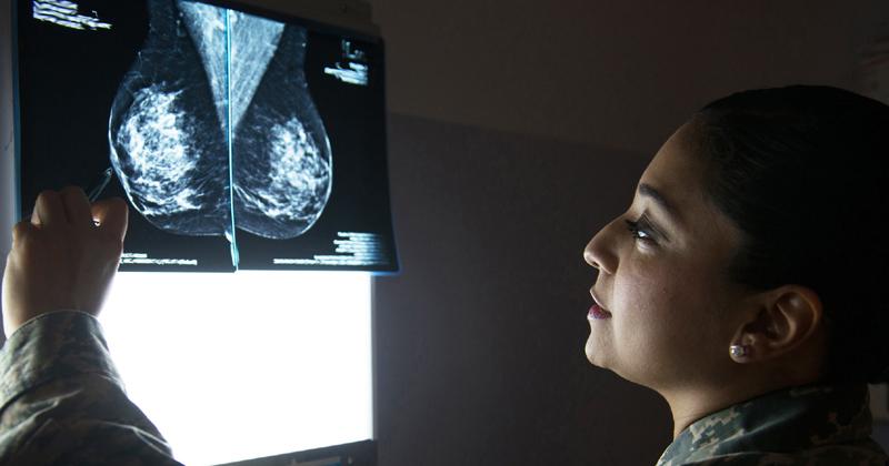 Atividade física regular pode evitar morte por câncer de mama