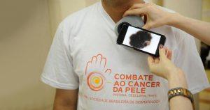 Campanha contra câncer de pele realiza atendimento em SP e Ribeirão