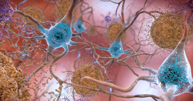 Doença neurológica causa movimentos de torção involuntários pelo corpo