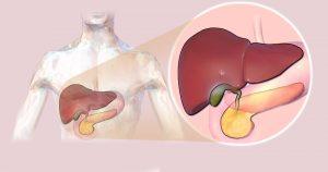 Cirrose alcoólica e hepatites são as doenças que mais levam ao transplante de fígado