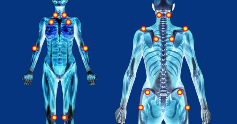 Resultado de imagem para musculos fibromialgia
