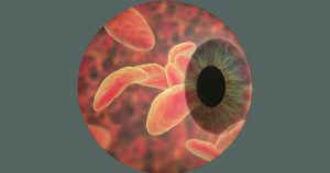 Parasita da toxoplasmose causa lesão típica e se espalha pela retina