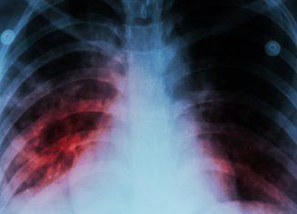 Pulmão com mycobacterium tuberculosis - Foto: Puwadol J./123RF