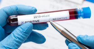Rede Colaborativa USP contribui com diagnósticos e leitos para covid-19