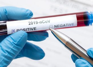 Casos de coronavírus confirmados no Brasil - Foto: Freepik
