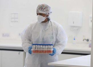 Recepção de amostras para teste do Coronavirus no Laboratório Central do Estado (LACEN) - Foto: Geraldo Bubniak/AEN via Fotos Públicas