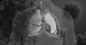 Resultados preliminares mostram que anticoagulante melhora respiração de pacientes graves com Covid-19
