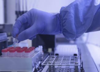 Exames para Covid-19 realizados no Laboratório de Vírus Respiratórios e do Sarampo do Instituto Oswaldo Cruz. - Imagem: Fundação Oswaldo Cruz