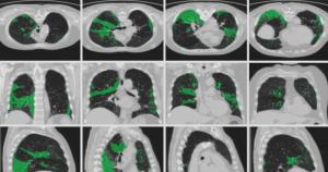 Sistema que identifica covid-19 em tomografias é selecionado em desafio internacional