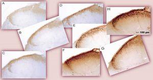 Em testes com animais, medicamento hemopressina reduz dores causadas por artrite reumatoide