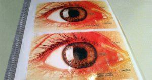 Cegueira e deficiência visual devem dobrar até 2050, aponta estudo