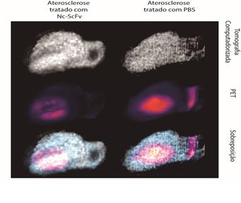Em testes com camundongos, estratégia terapêutica desenvolvida na USP diminui em 74% a formação de lesão aterosclerótica e em 88% a liberação de moléculas inflamatórias - Imagem: Divulgação